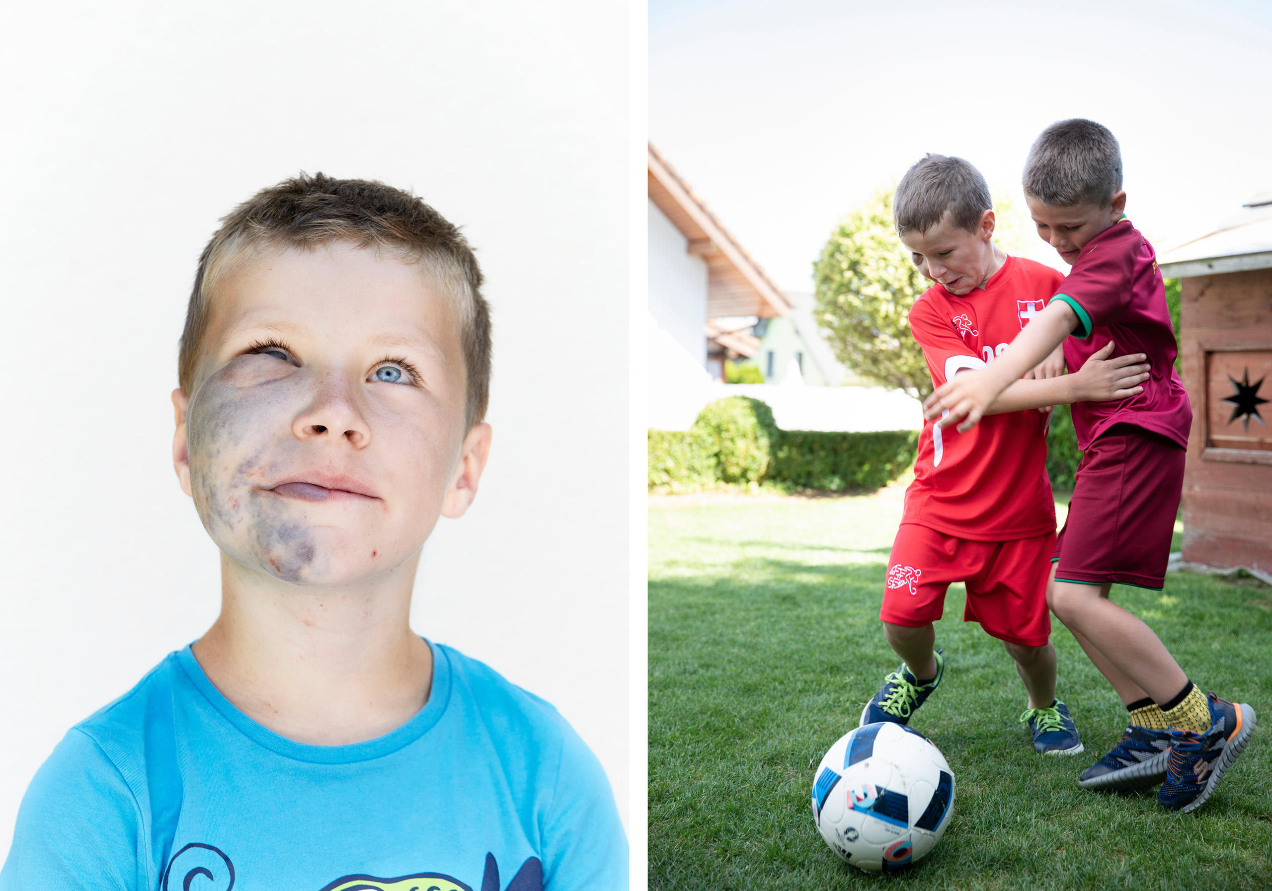 Pictures of a boy with severe skin lesions on his face