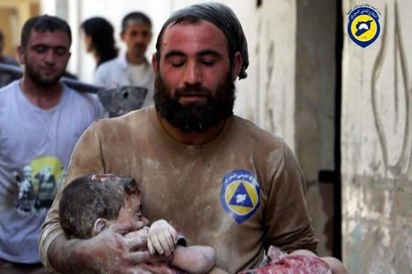 Syrischer Helfer trägt ein kleines Kind, das bei einem Bombenangriff verletzt wurde.