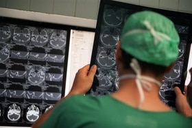 A doctor looking at x-rays