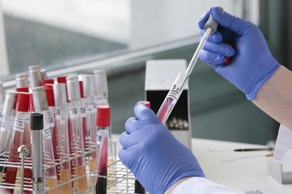 開発 天然 痘 薬 の 者 予防