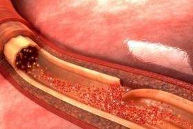 Aspirin Blutverdünner